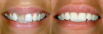 Smile Gallery - Gentle Dental Group, Yorkville Dentist