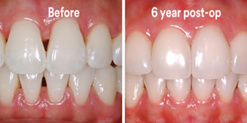 BioClear Diastema Closure and Black Triangle Closure  - Gentle Dental Group, Yorkville Dentist