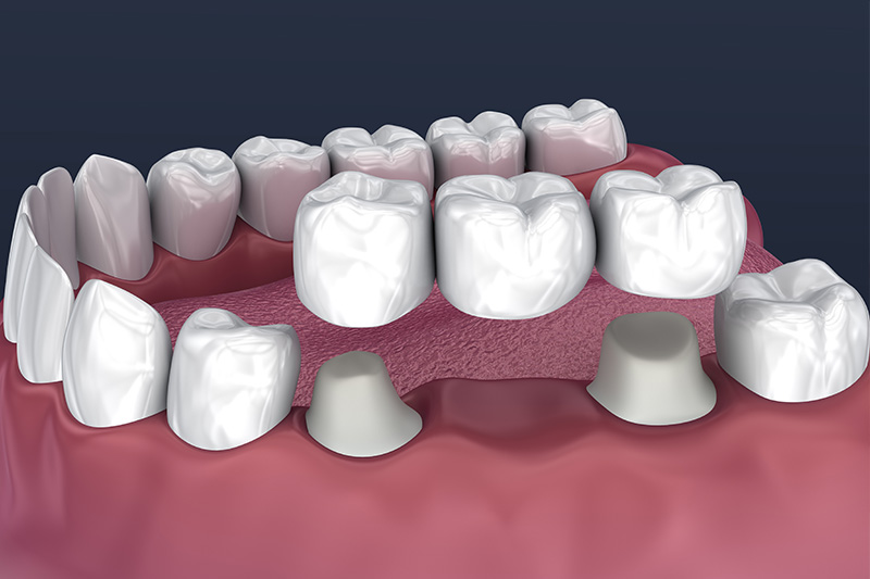 Crowns and Bridges, Inlays and Onlays  - Gentle Dental Group, Yorkville Dentist