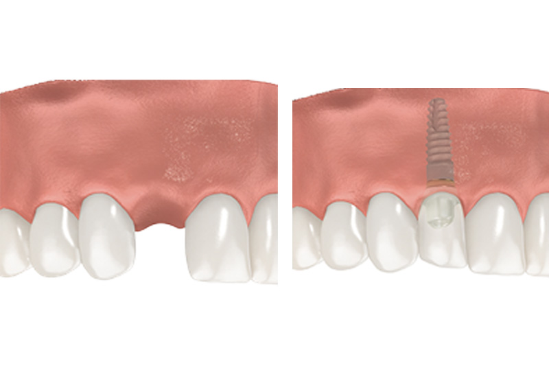 Dental Implants - Gentle Dental Group, Yorkville Dentist