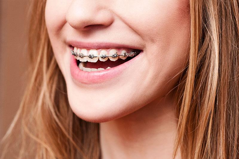 Orthodontics - Gentle Dental Group, Yorkville Dentist