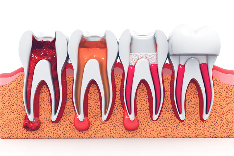 Root Canal Therapy  - Gentle Dental Group, Yorkville Dentist
