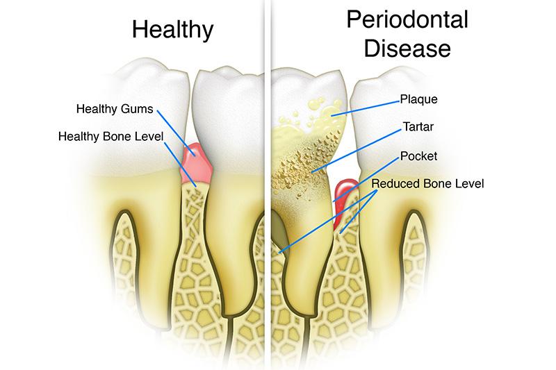 Scaling & Root Planings (Deep Cleanings)  - Gentle Dental Group, Yorkville Dentist