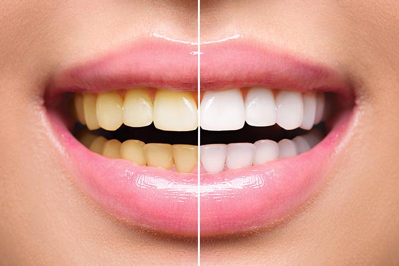 Teeth Whitening - Gentle Dental Group, Yorkville Dentist