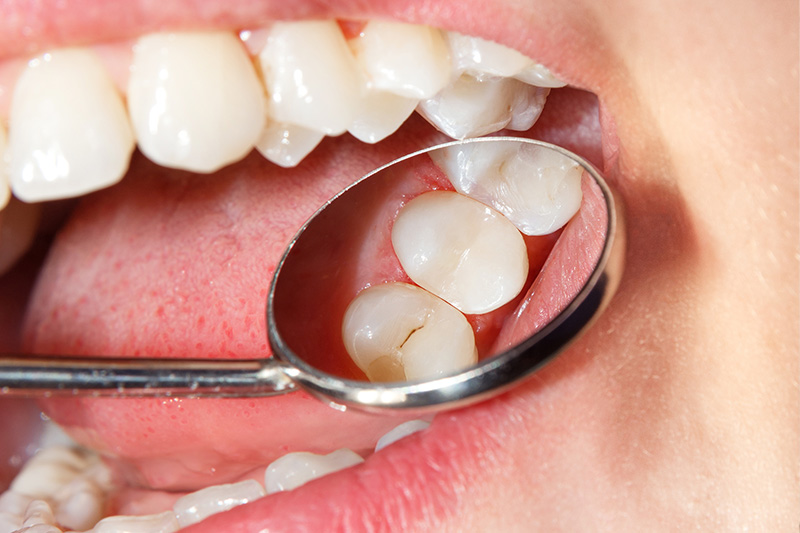 Tooth Colored Composite Fillings  - Gentle Dental Group, Yorkville Dentist