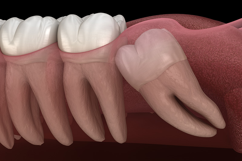 Wisdom Teeth Extractions (with Sedation)  - Gentle Dental Group, Yorkville Dentist